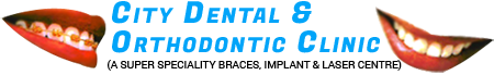 City Dental Delhi